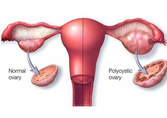 PCOS-treatment-in-ayurveda